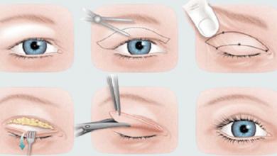 Yorgun Gözlere Son: Göz Kapağı Kaldırma ve Alın Germe